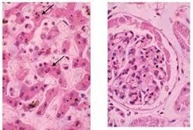 Hepatitis Canina